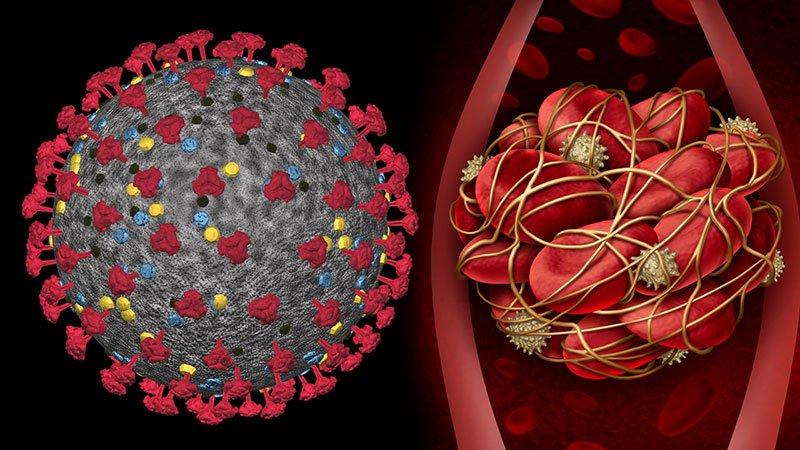 Maillot de bain Extra Evidence Helps Early Anticoagulation in COVID-19