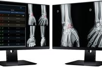 Maillot de bain Azmed soulage les radiologues avec son logiciel de détection des fractures osseuses